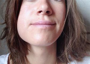 Diş hekimi ziyaret ettikten sonra ağız bakımı