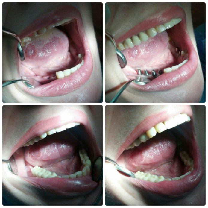Çiğneme dişlerine protez takılması