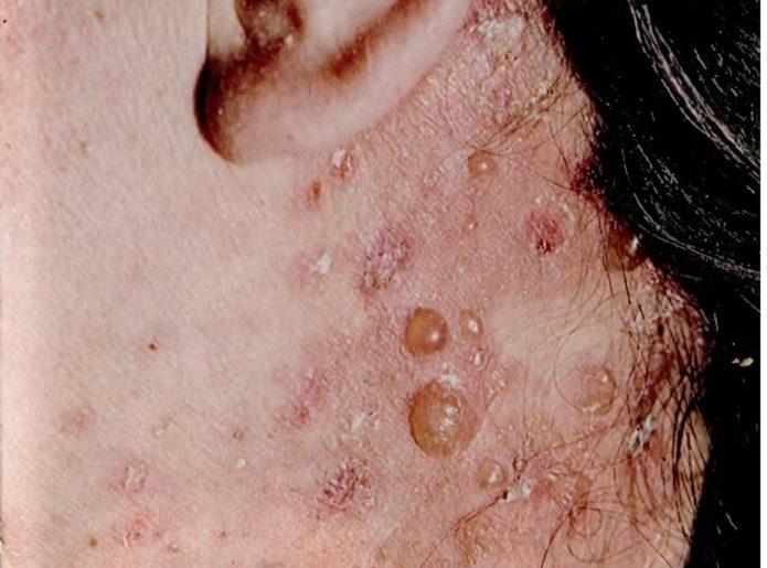 Dermatit Dühring