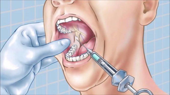 Sakız enjeksiyonu
